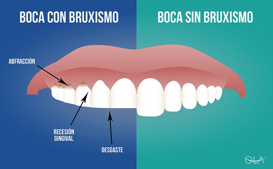 Bruxismo y Ortodoncia