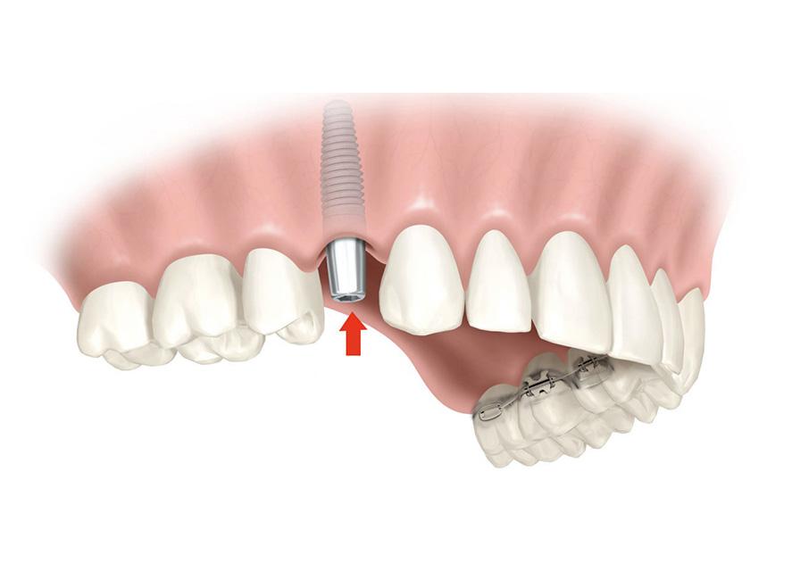 Si tengo implantes, ¿me puedo hacer ortodoncia?